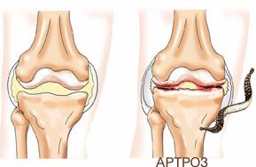 Справа сустав, поврежденный артрозом.  Ограничение суставной подвижности характерно для следующих заболеваний.