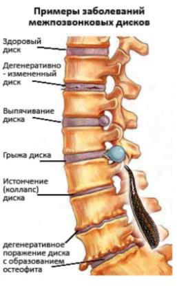 гирудотерапия, пиявки при остеохондрозе