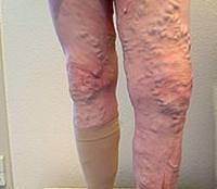 Артериальный тромбоз правой голени
